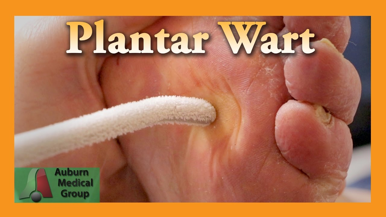 wart treatment by doctor