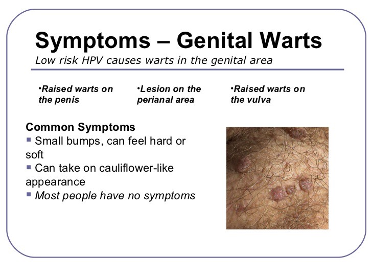 how to treat genital papillomavirus