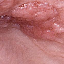 hpv cause skin rash
