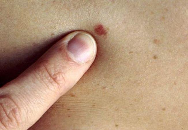 cancer de piele cu celule scuamoase