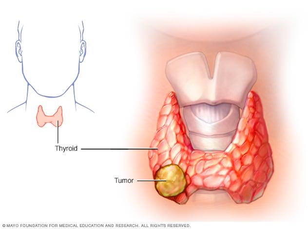 cancer de tiroide imagenes come curare il papilloma virus nel cane