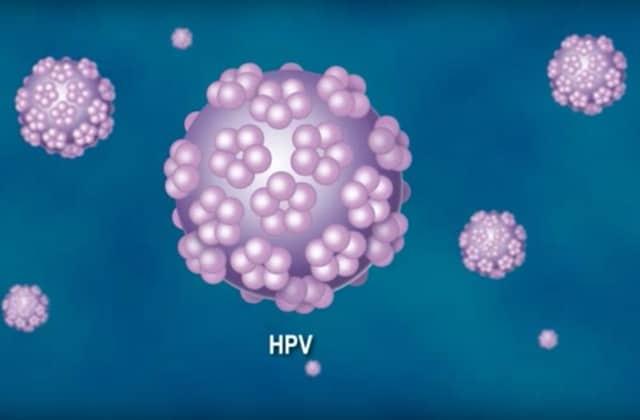 papillomavirus et naturopathie squamous papilloma nasal septum