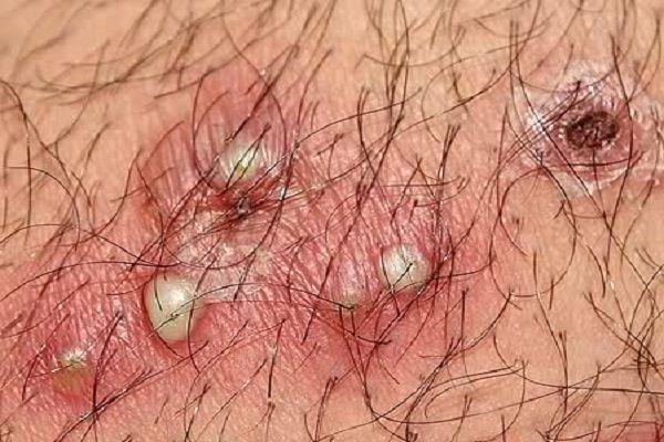 virus hpv guarigione hpv warzen bilder