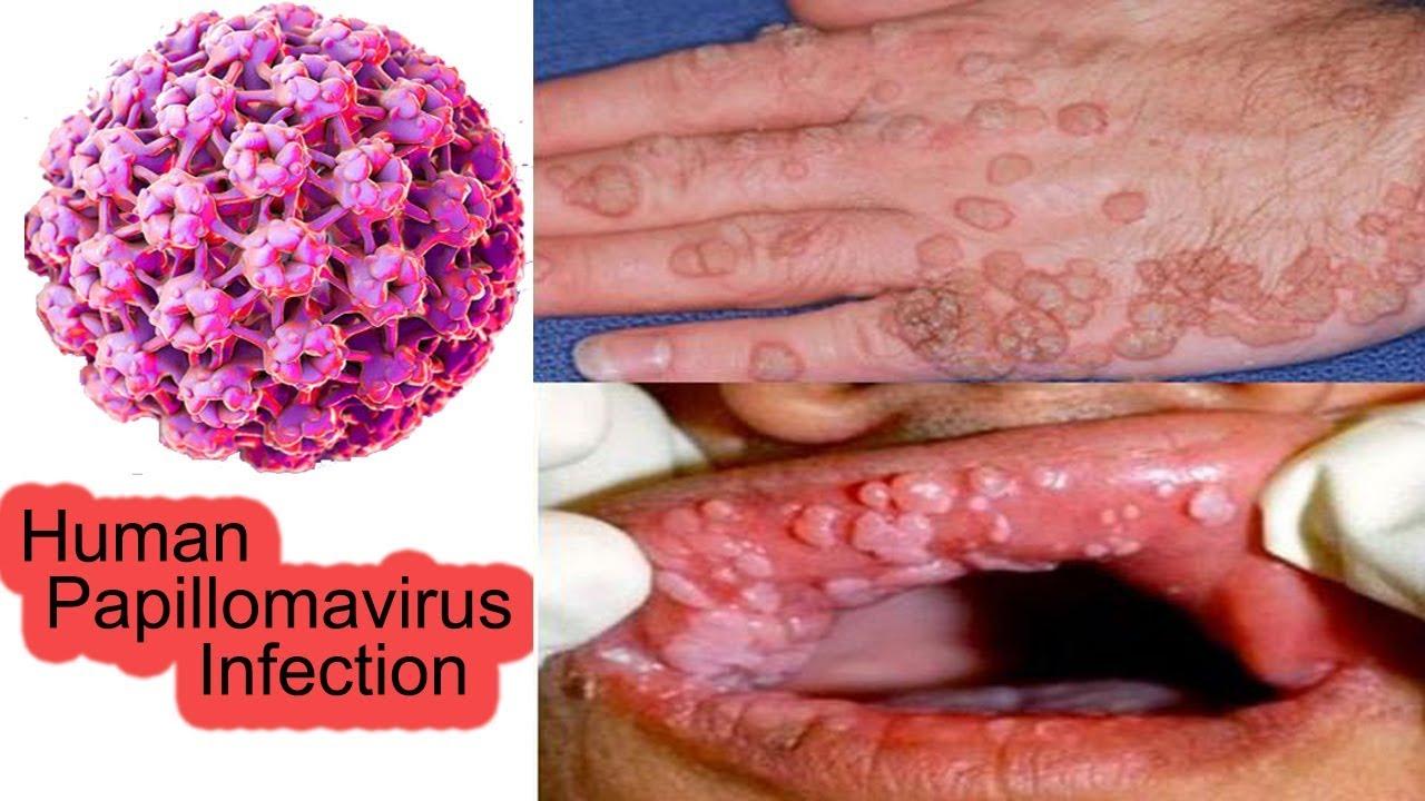 homme porteur de papillomavirus