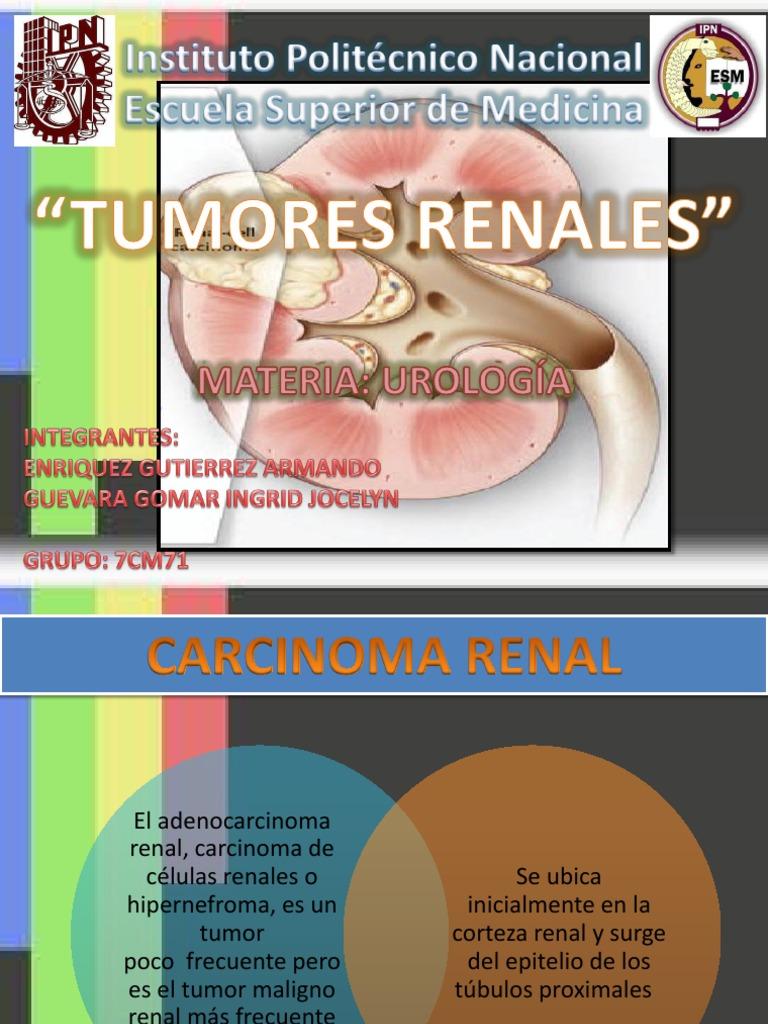 una enfermedad genética - Traducere în română - exemple în spaniolă   Reverso Context