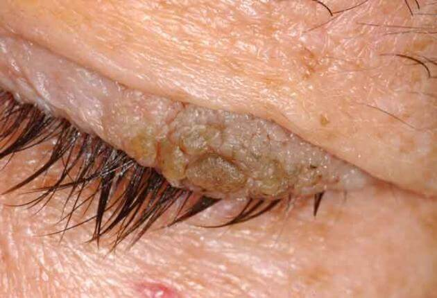 papillomas on eyelid pictures