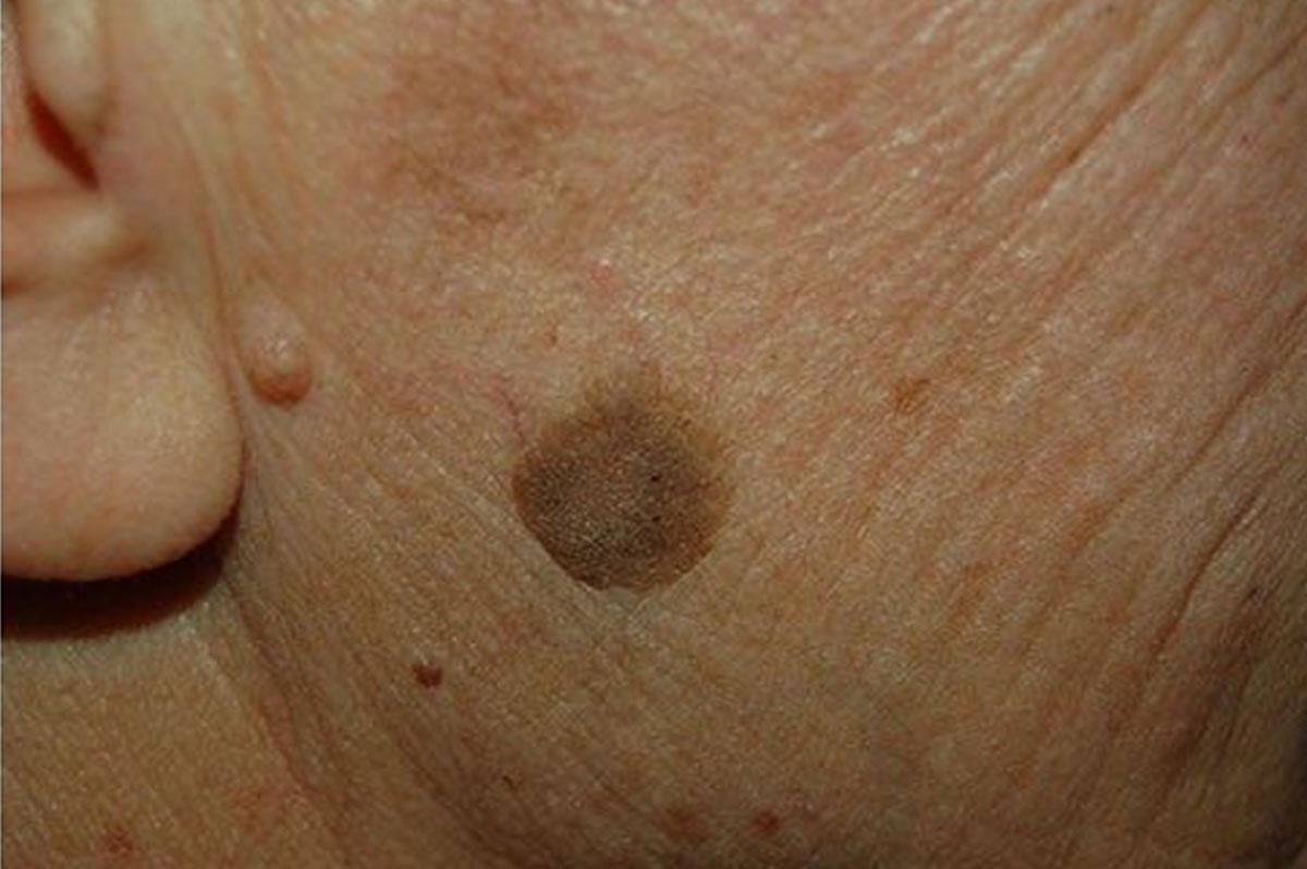 Poze papilomas hiperplazie scuamoasă