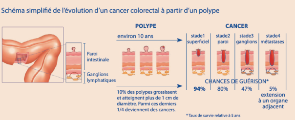 cancer du gros intestin stade 3