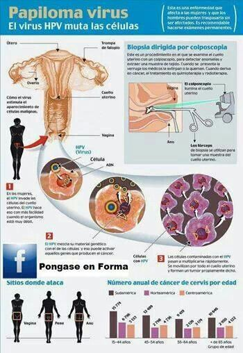 virus papiloma humano que hacer