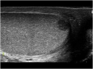 cancer testicular usg hpv tumore bocca