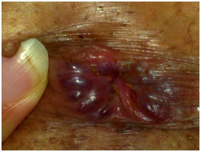 verme oxiurus gravidez cancer colon diagnosis