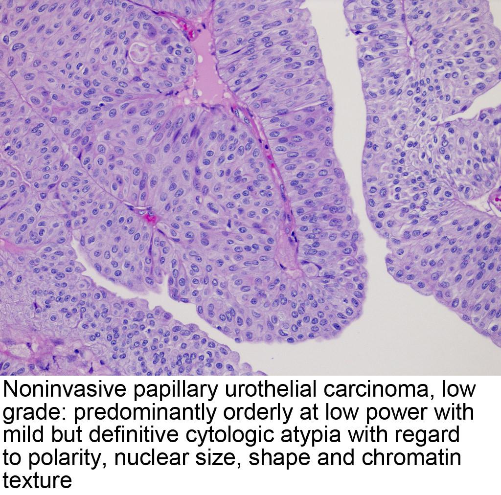 papillary urothelial cell carcinoma