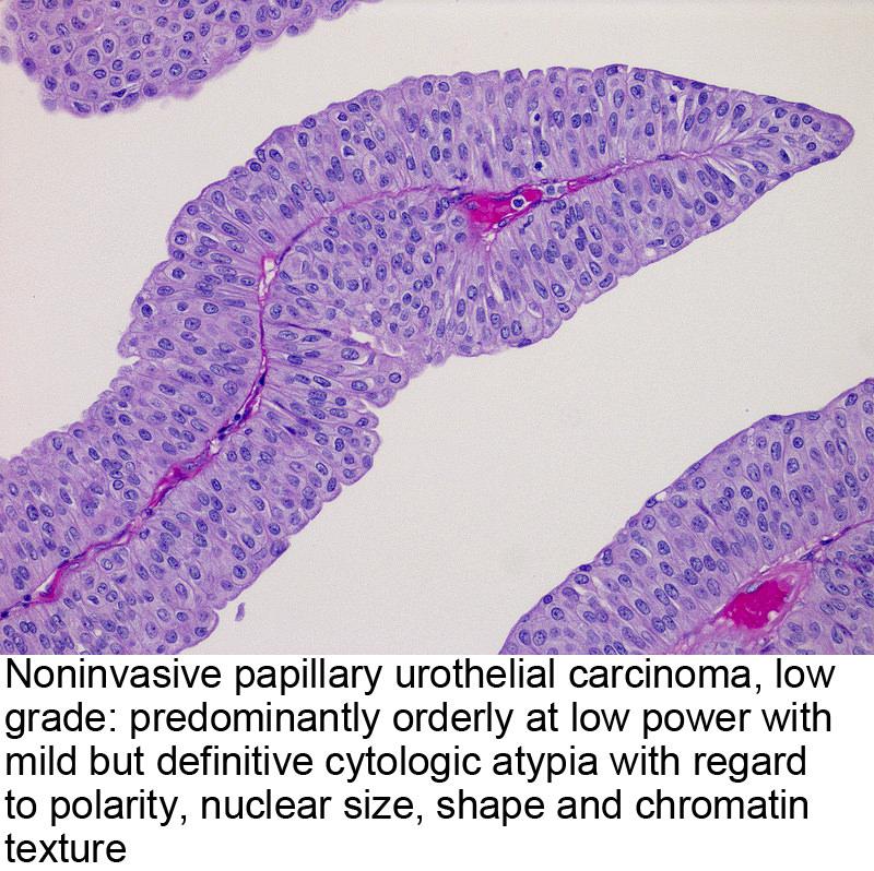 papillary urothelial of carcinoma