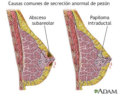 papiloma intraductal en las mamas