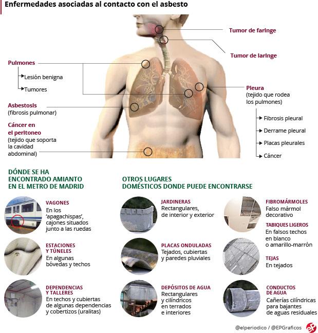 cancer pulmonar por asbesto vierme sobolan cu coada apa itu