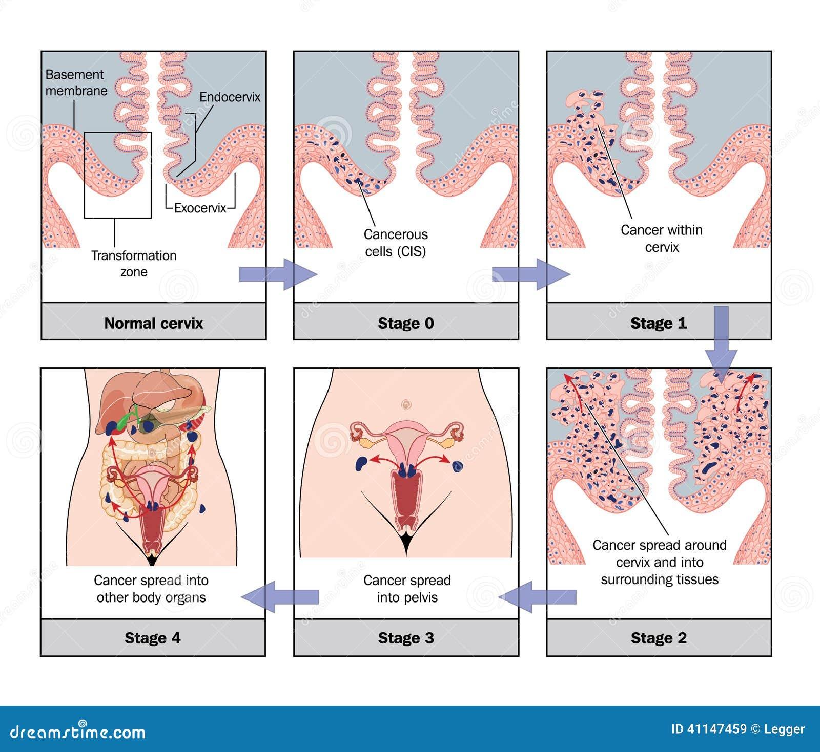 cervical cancer progression