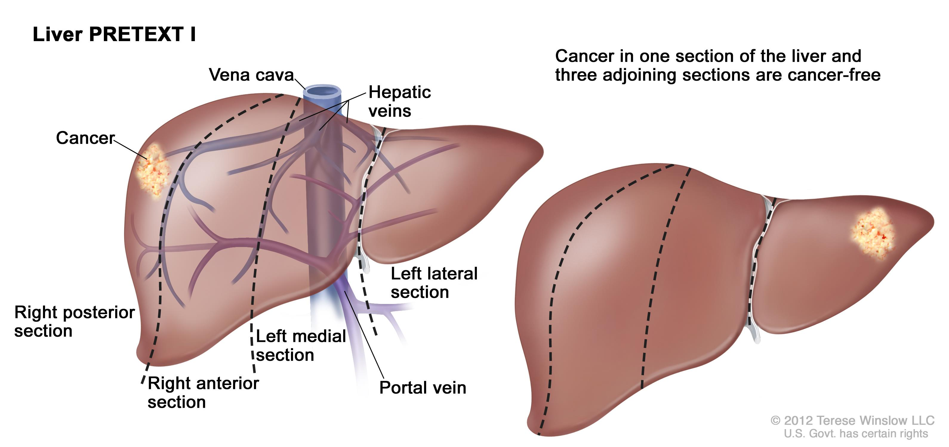 Cancerul Hepatic