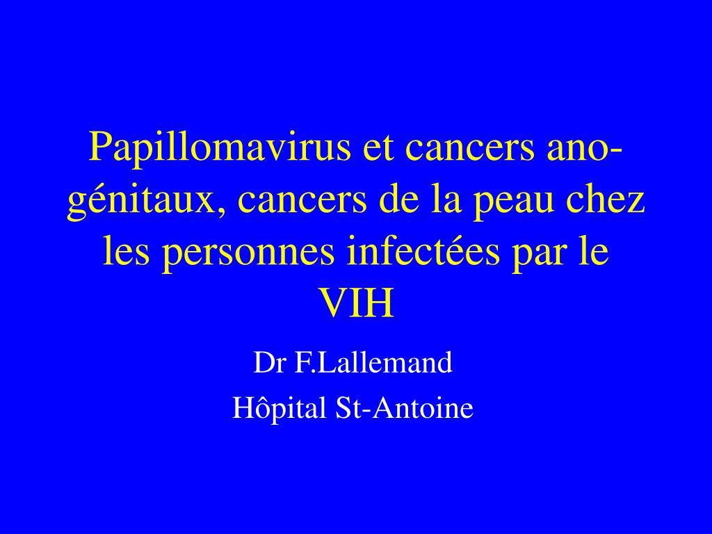 papiloma invertido es cancer