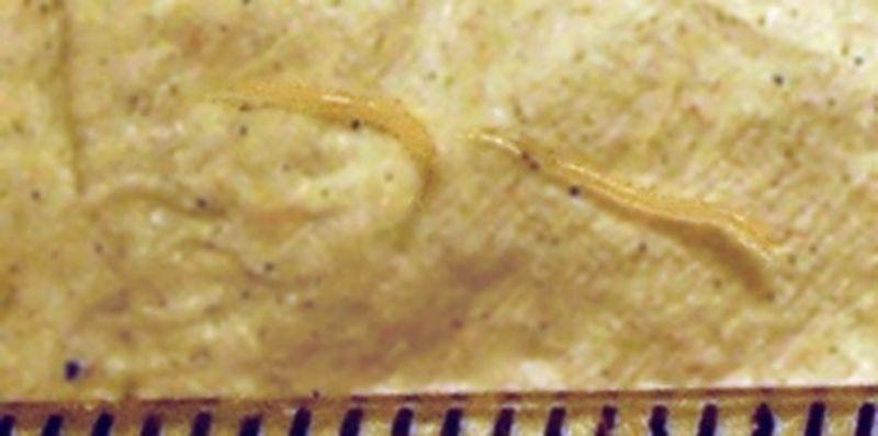 paraziti intestinali bebelusi simptome