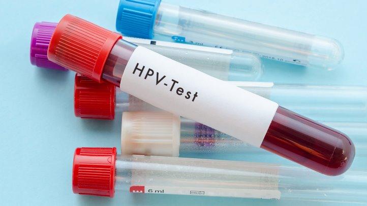 Testare HIV, hepatite etc. în centrele ARAS din Bucureşti