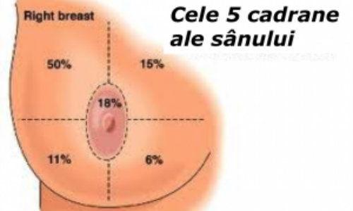 Ce este cancerul mamar inflamator. Semnele acestei afecţiuni