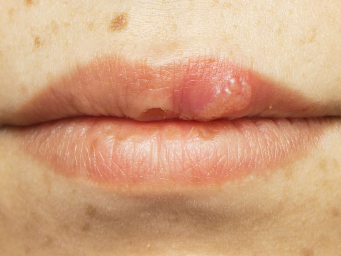 does hpv virus cause cold sores