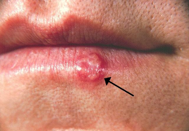 virus papiloma humano diagnostico hombres