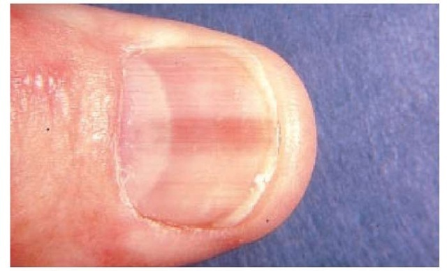 cancer unghii picioare
