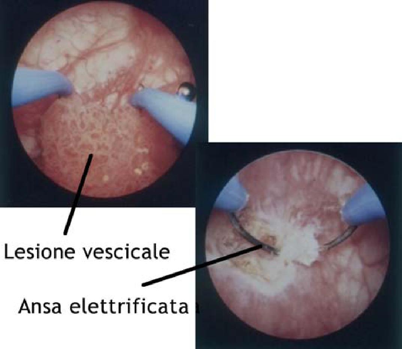 papilloma vescicale cause
