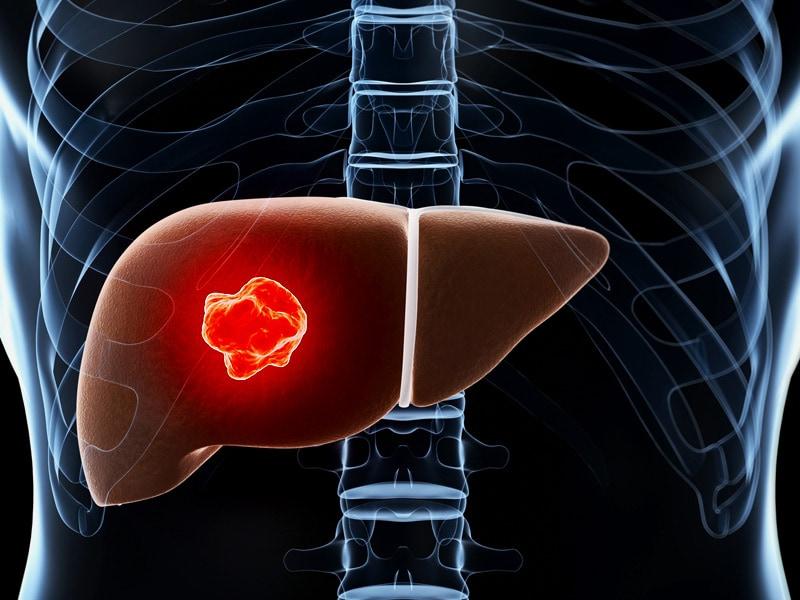 hepatocellular cancer medscape mambo no 9 parazitii