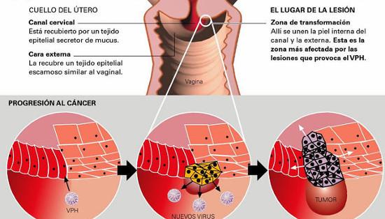 virus papiloma utero