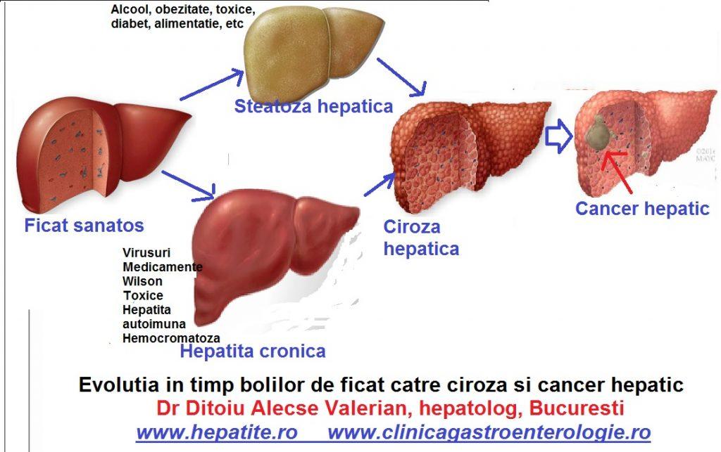 papillary thyroid cancer presentation