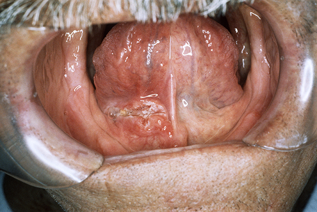 hpv tongue test