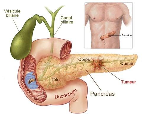 cancer la san faza 2