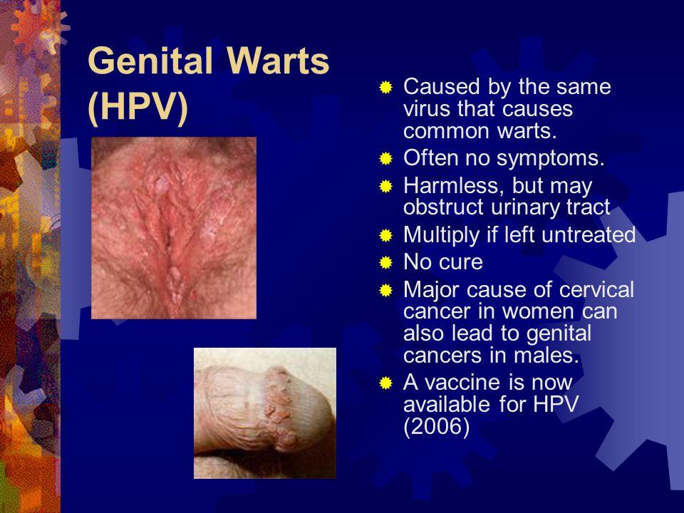 Tratamentul HPV genital / Warts și medicamente | Health Life Media