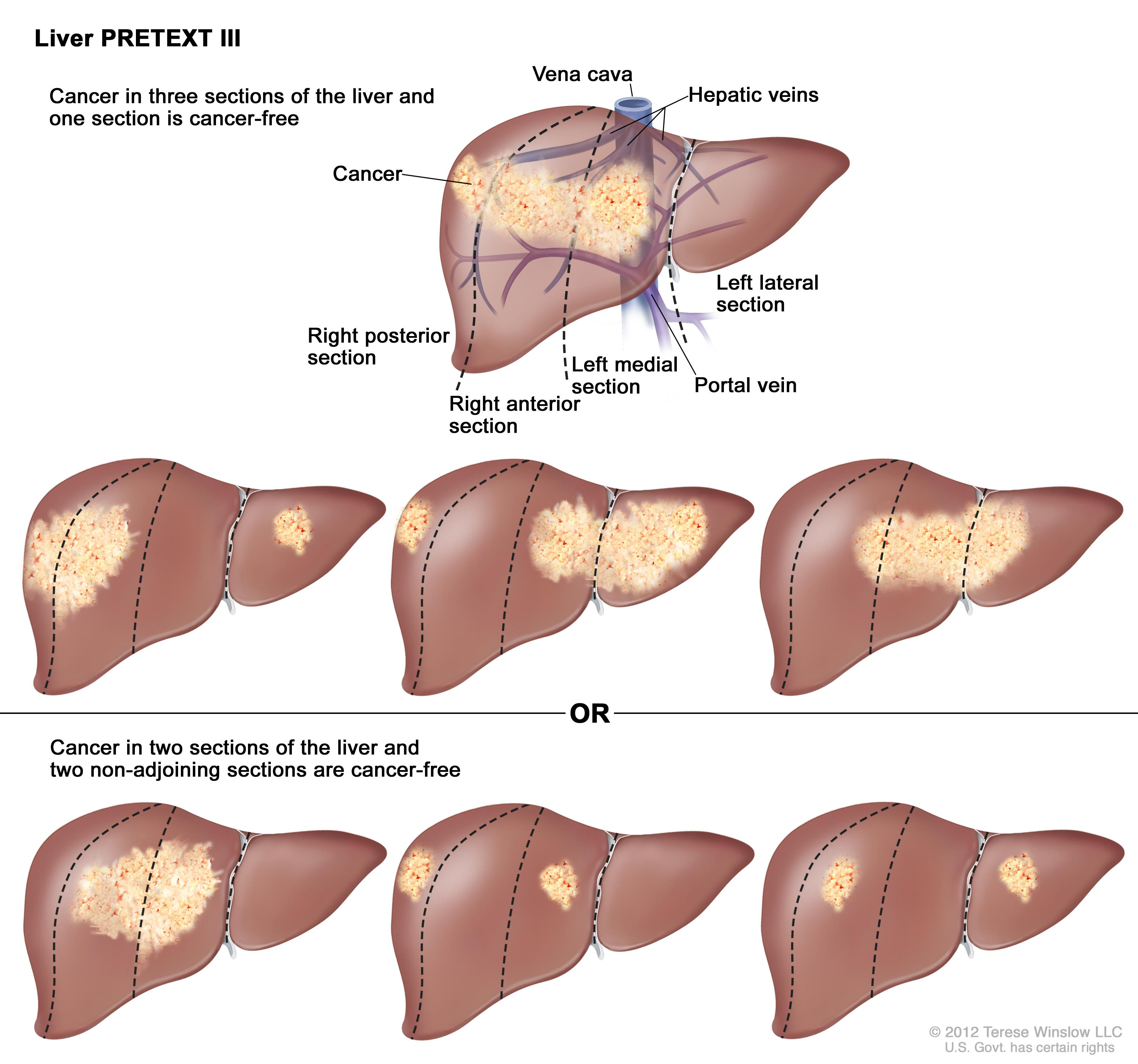 hepatic cancer prognosis cancer osos cauze simptome