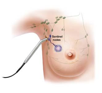 durata intervento papilloma del seno