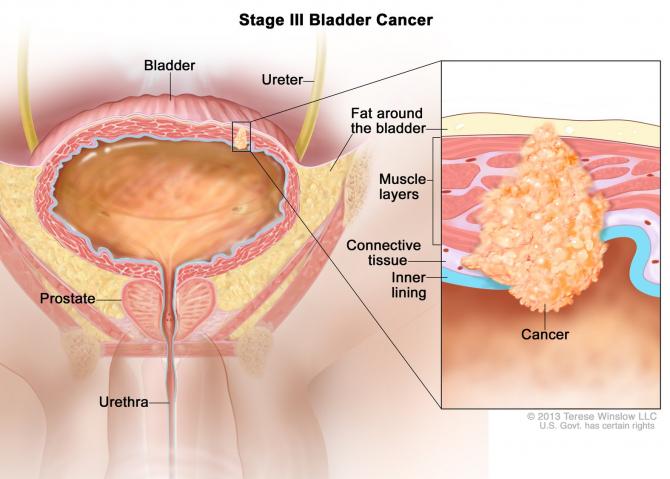 Cancerul vezicii urinare: prezent si perspective