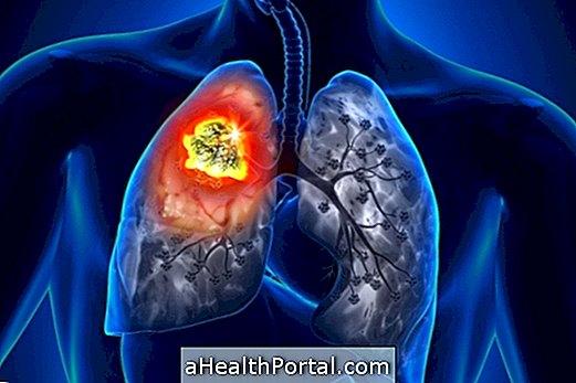 """Fumatul, """"conectat"""" cu 90% din cazurile de cancer"""