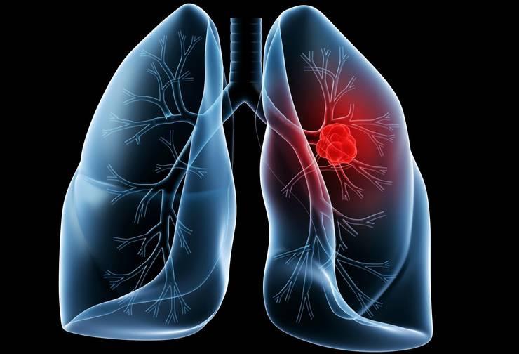 cancer pulmonar depistare