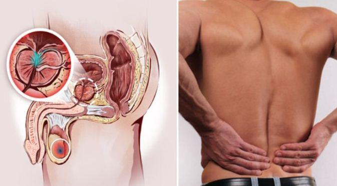 simptome cancer la prostata