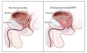 cancer de prostata localmente avancado tem cura