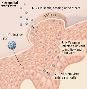 papiloma virus bradavice vph virus del papiloma humano que es