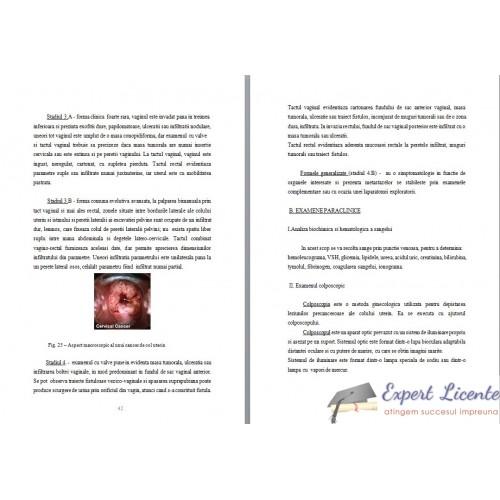 cancerul de col uterin plan de ingrijire
