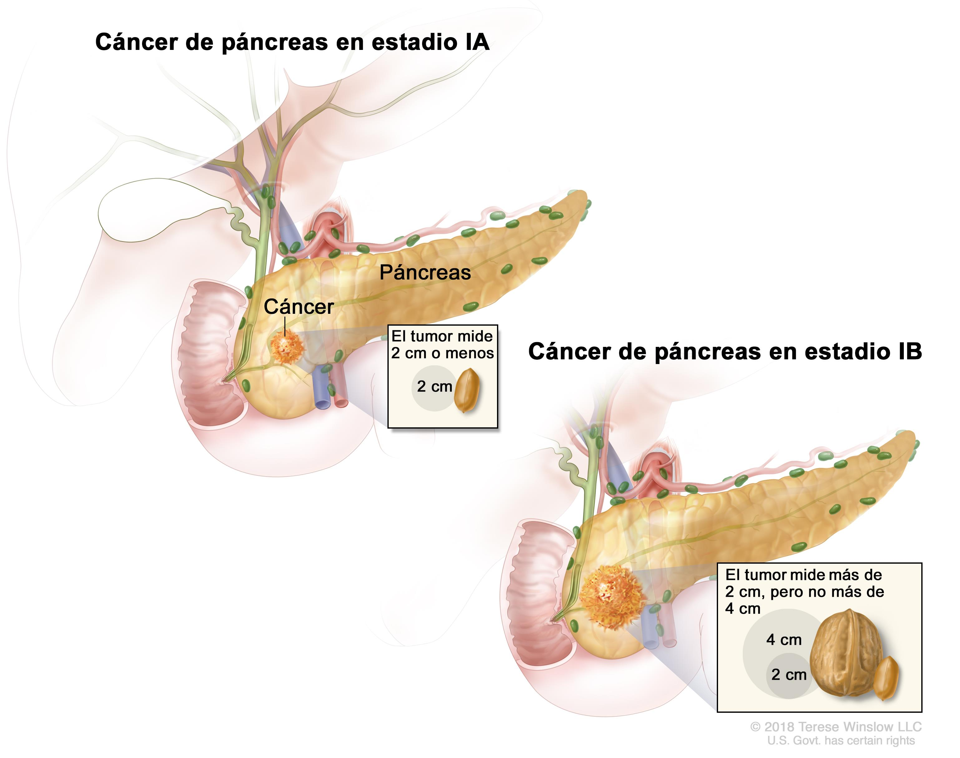 cancer de pancreas quimio