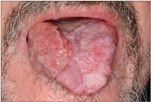 papiloma virus em caes tratamento papilom intraductal