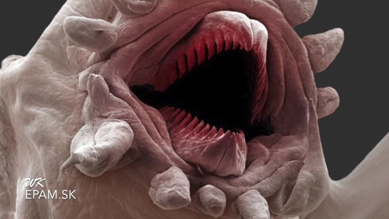 parazity v ludskom tele laryngeal papilloma polyp