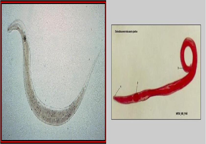 enterobius vermicularis = oxyuris vermicularis papillomavirus jacuzzi