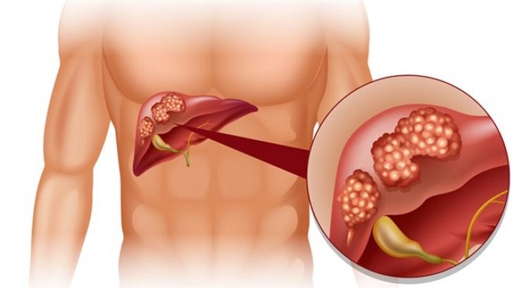 Cum apare cancerul de ficat. Simptomele acestei afecţiuni oncologice | primariabeuca.ro