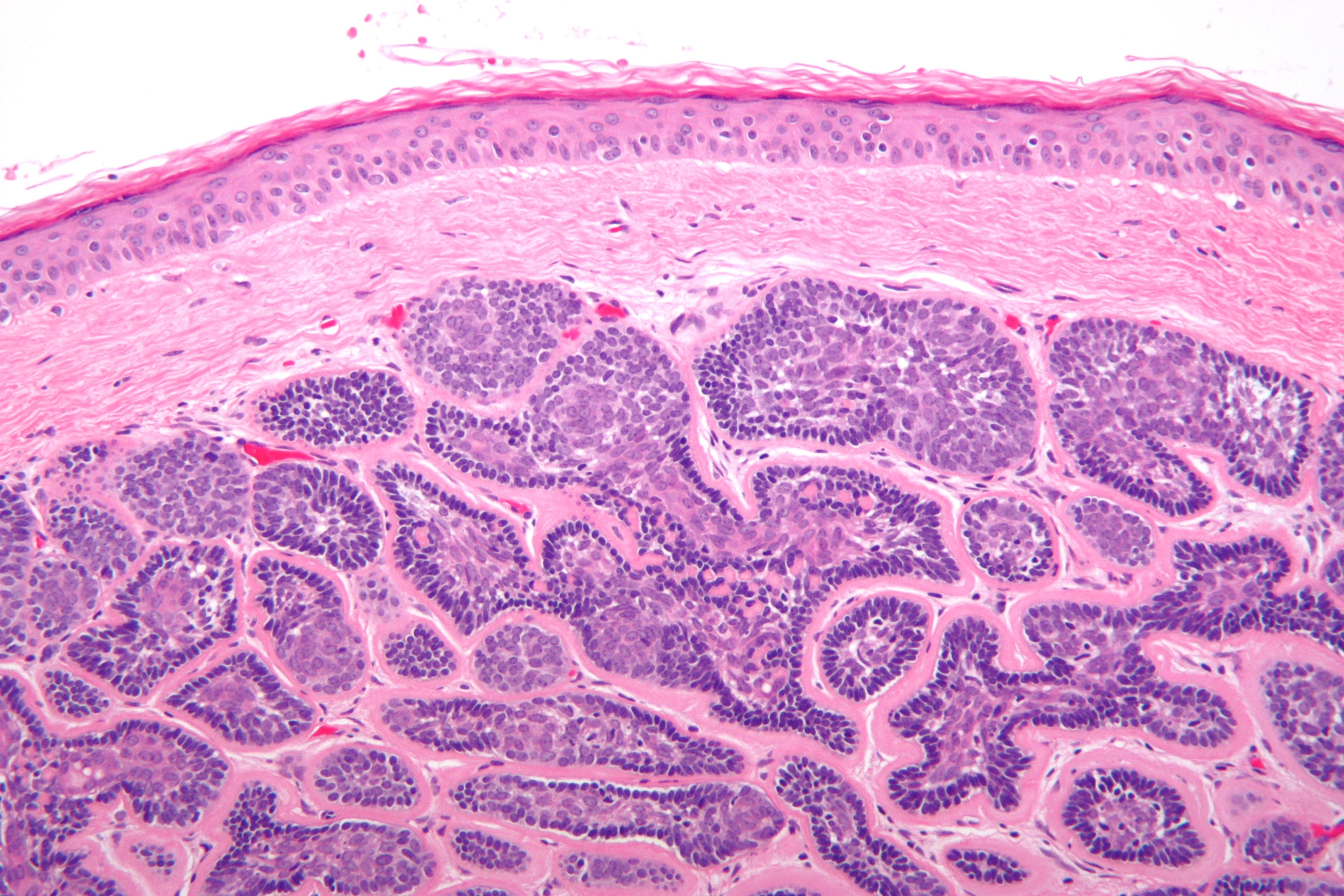 papilloma pathology outlines skin